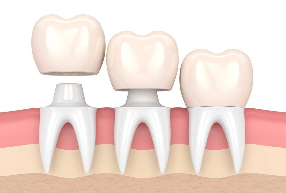 5 Facts That Everyone Should Know about Dental Crowns